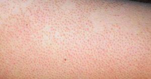 Triệt lông bằng công nghệ công nghệ Record 618 giúp điều trị viêm nang lông