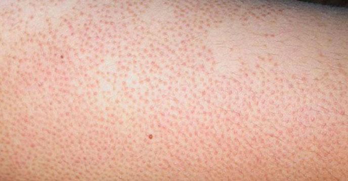 Viêm chân lông vừa ảnh hưởng đến vẻ bên ngoài vừa gây ngứa ngáy, khó chịu