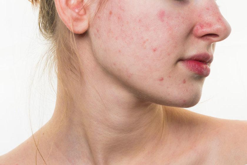 Tại sao cần phải trẻ hóa làn da sau mụn?