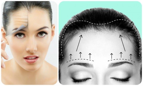 Phẫu thuật căng da trán có nguy hiểm không?