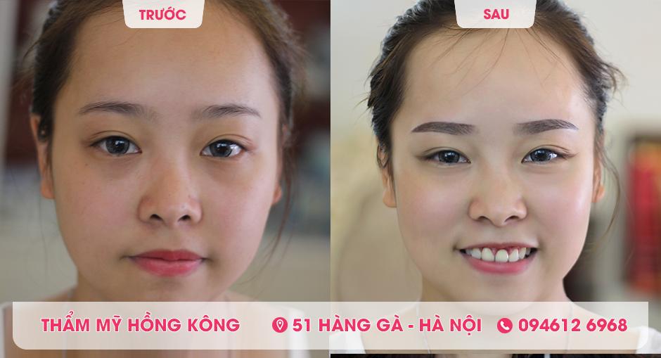 Kết quả phun lông mày tại Thẩm mỹ Hồng Kông.