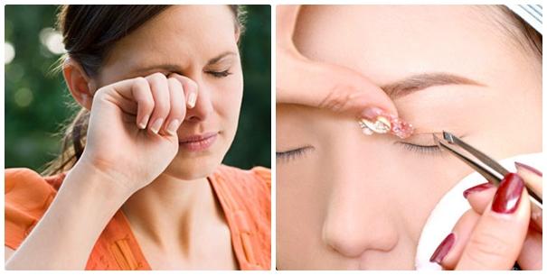 Việc thường xuyên dùng miếng dán kích mí rất có hại cho mắt.