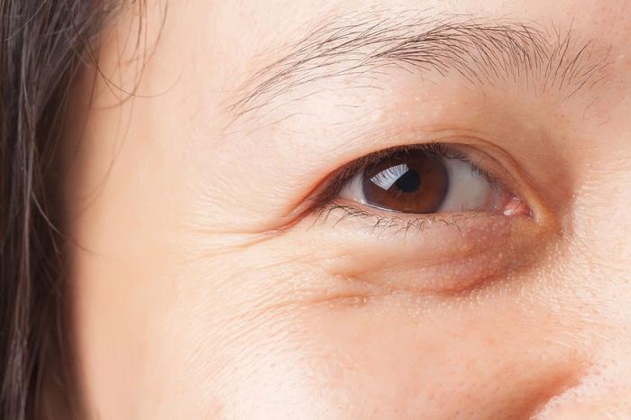 Công nghệ xóa nhăn khóe mắt có thực sự hiệu quả như quảng cáo?