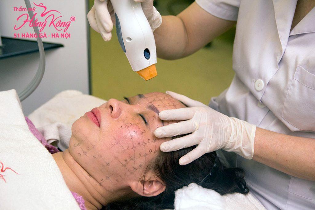 Trẻ hóa da với phương pháp công nghệ cao - không phẫu thuật