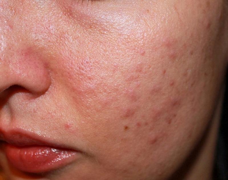 Nhiều trường hợp bị viêm da, dị ứng do sử dụng collagen sai cách