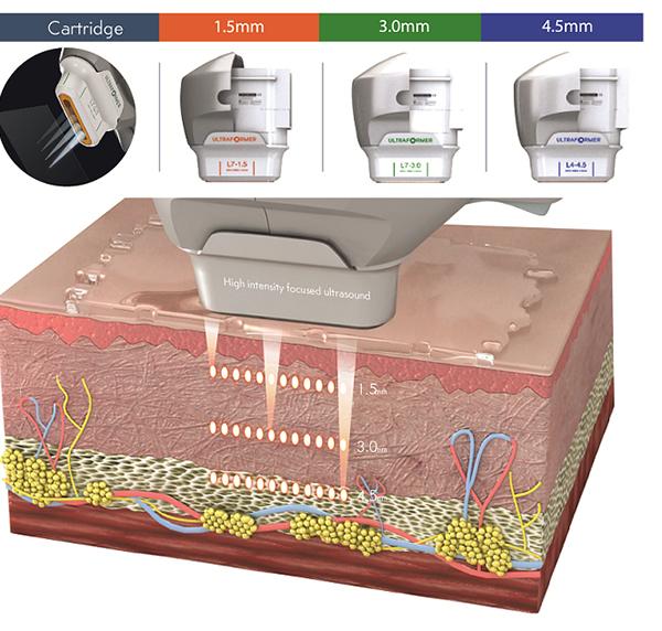 Cơ chế trẻ hóa da bằng công nghệ HIFU Ultraformer như thế nào?