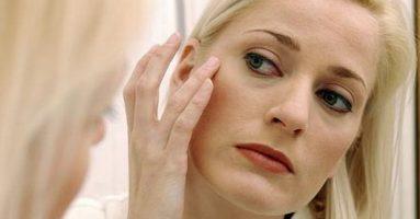 Công nghệ Thermage căng da có an toàn không?
