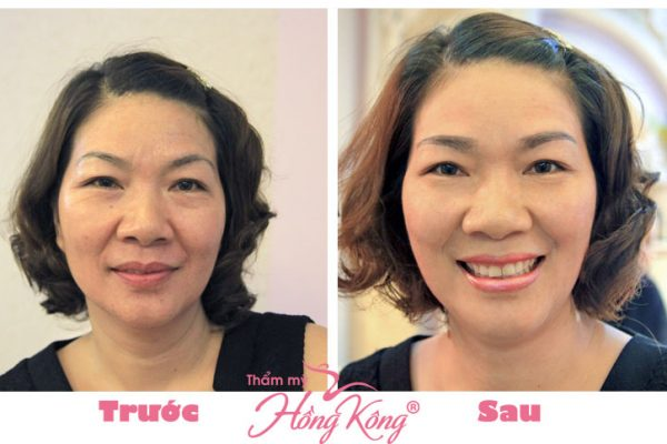Khách hàng trước và sau khi căng da mặt và cổ tại Thẩm mỹ Hồng Kông