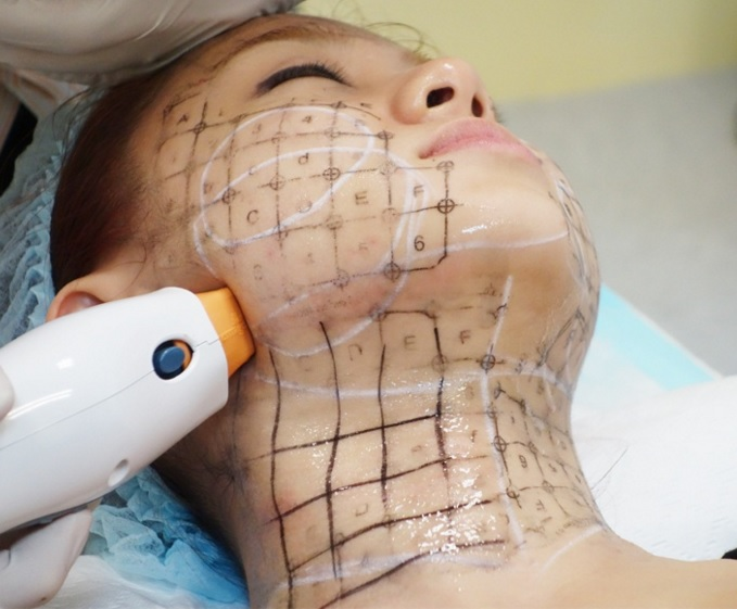 Căng da mặt bằng công nghệ Thermage được bao lâu là băn khoăn của nhiều người