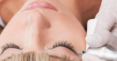 Chuyên gia tư vấn: phun mí mắt trên có đau không?