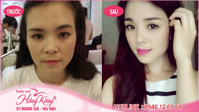 Khách hàng trước và sau khi phun xăm mí mắt tại Thẩm mỹ Hồng Kông