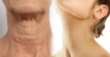 Căng da cổ có hiệu quả không?