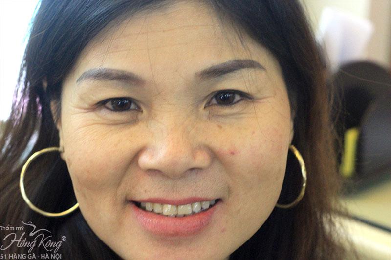 """Sự khác biệt giữa các """"siêu"""" công nghệ trẻ hóa da toàn diện tại thẩm mỹ Hồng Kông"""