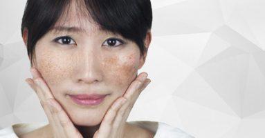 Vì sao bạn bị nám da mặt? – Cách trị nám da mặt hiệu quả