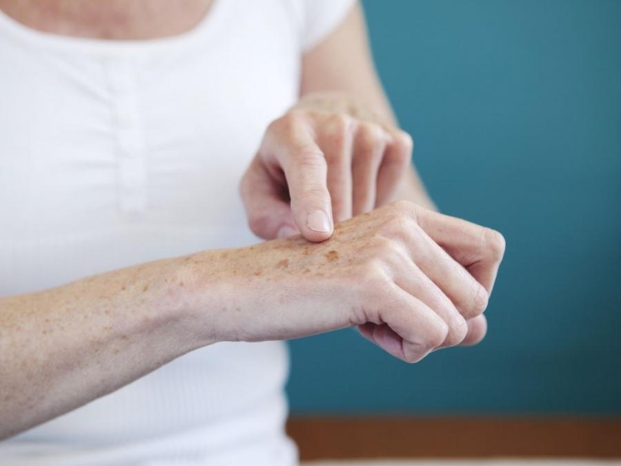Nám da tay và những cách điều trị nám da tay hiệu quả