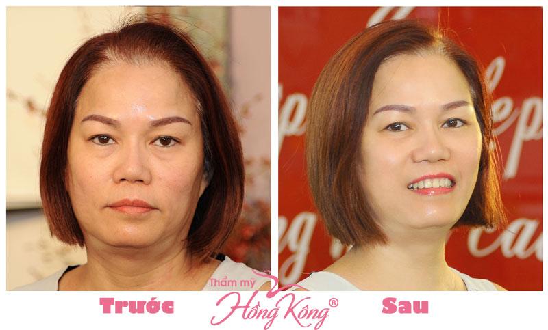 Khách hàng trước và sau khi thực hiện căng da mặt tại Thẩm mỹ Hồng Kông