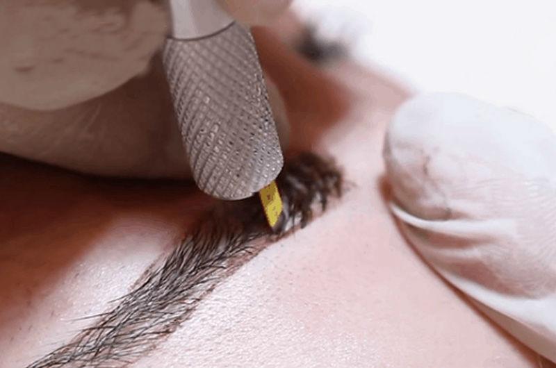 Điêu khắc lông mày đảm bảo an toàn, không đau và không để lại biến chứng