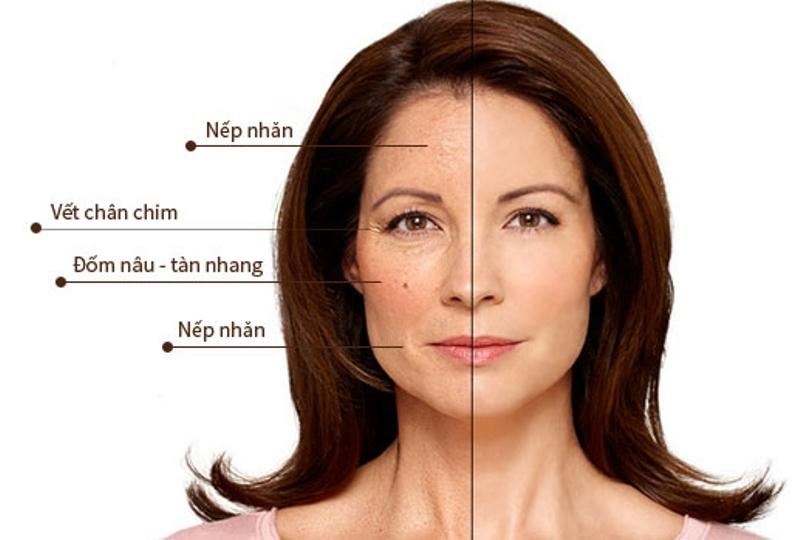 Nhiều chị em phụ nữ hiện đại có nhu cầu căng da mặt để níu giữ thanh xuân