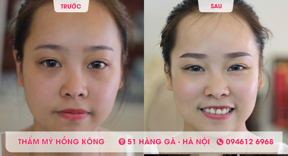 Khách hàng trước và sau khi phun lông mày tại Thẩm mỹ Hồng Kông