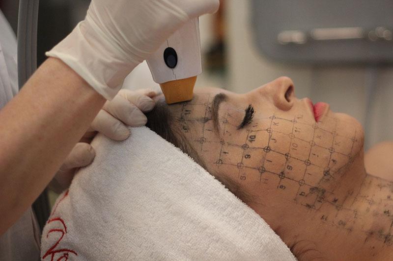 Người mẫu Andrea Aybar đang trải nghiệm công nghệ cao Thermage trẻ hóa làn da tại thẩm mỹ Hồng Kông, 51 Hàng Gà.