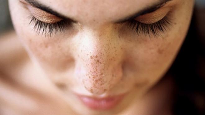 Bước vào độ tuổi 35, làn da của tôi trở nên khô sần, xuất hiện các đốm nâu sạm nám, vết nhăn nheo...