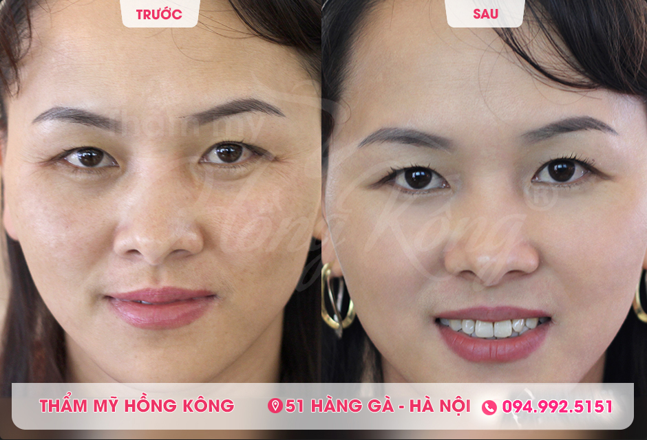 Ảnh trước và sau khi khách hàng căng da mặt