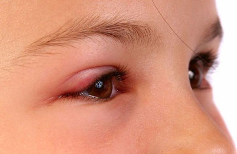 Sau phun xăm, vùng mí mắt thường bị đau từ 2-3 ngày
