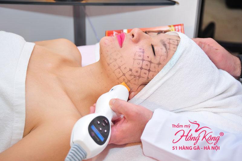 Chuyên gia chọn đầu Tip phù hợp di chuyển nhẹ nhàng xung quanh vùng da cần điều trị