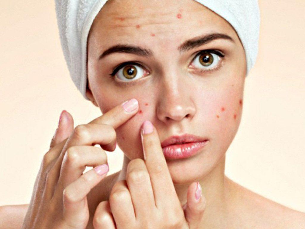Mụn là vấn đề về da khá phổ biến, gây mất thẩm mỹ cho gương mặt