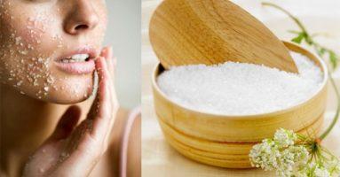Mụn bao nhiêu cũng hết với cách trị mụn bằng muối