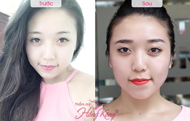 Khách hàng trước và sau khi phun phiêu lông mày, mí mắt và môi tại Thẩm mỹ Hồng Kông