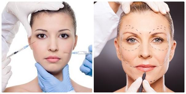 """Phương pháp phẫu thuật căng da mặt bị """"thất sủng"""" và không còn được đánh giá cao như trước."""
