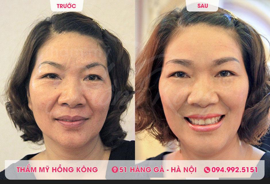 Hình ảnh thực tế của khách hàng trước và sau khi căng da bằng Ultherapy