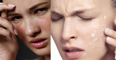 Căng da mặt bằng Ultherapy có nguy hiểm không?