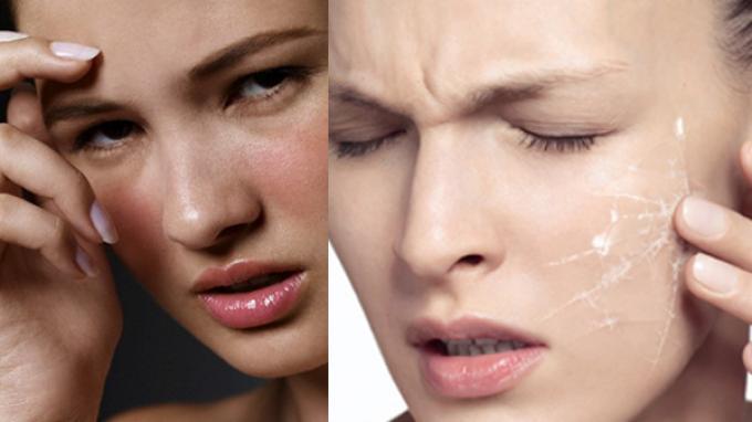 Căng da mặt bằng công nghệ Ultherapy có nguy hiểm không là thắc mắc của rất nhiều người
