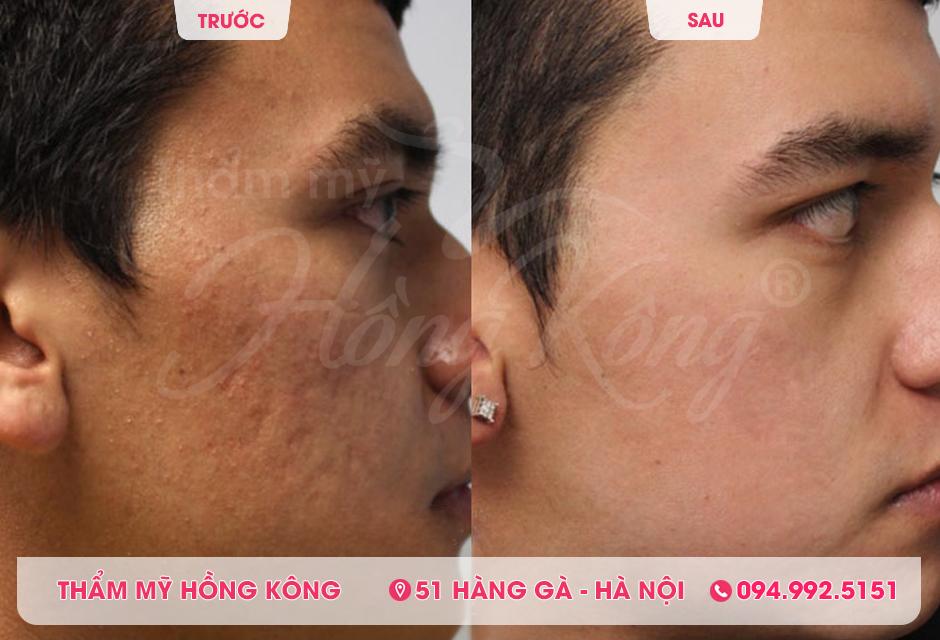 Ảnh thực tế khách hàng trước và sau khi trị mụn tại Thẩm mỹ Hồng Kông