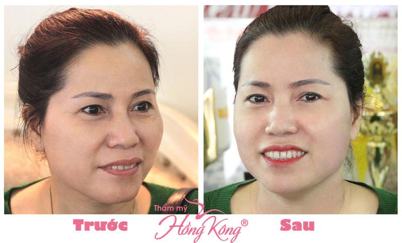 Ảnh thực tế khách hàng trước và sau khi trẻ hóa bằng Ultherapy tại Thẩm mỹ Hồng Kông