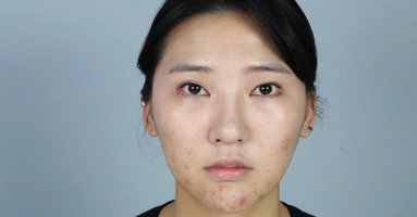 Trị mụn hết bao nhiêu tiền tại Thẩm mỹ Hồng Kông?