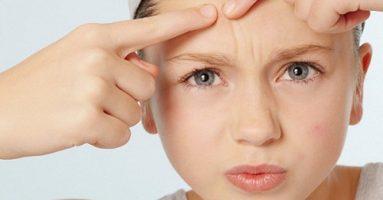 Thử ngay 3 cách trị mụn trứng cá tuổi dậy thì chỉ trong chớp mắt