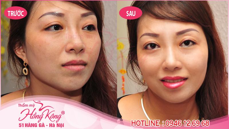 Hình ảnh thực tế khách hàng sau khi phun xăm môi tại Thẩm mỹ Hồng Kông