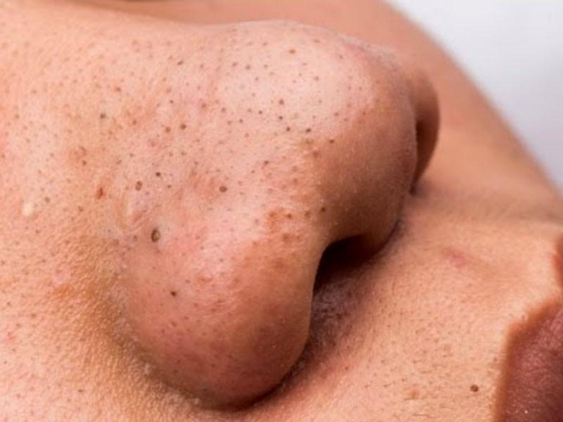 Chuyên gia bật mí 3 cách trị mụn đầu đen hiệu quả bằng lá tía tô