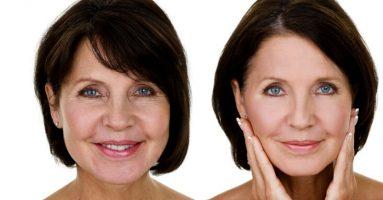 Phản hồi của khách hàng đã trải nghiệm công nghệ căng da mặt Ultherapy