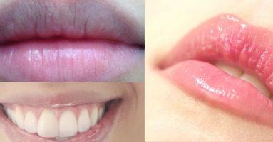 Môi thâm có nên xăm môi không? – Chia sẻ từ chuyên gia 25 năm kinh nghiệm