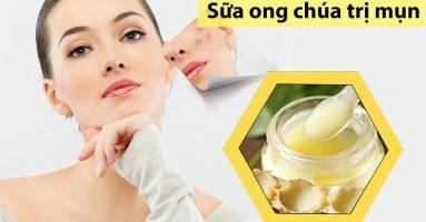 Điều trị mụn trên trán hiệu quả chỉ bằng 1 thìa sữa ong chúa
