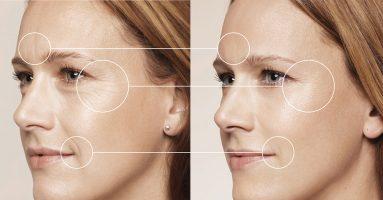 Địa chỉ căng da mặt ở đâu tốt nhất hiện nay? Phương pháp căng da mặt nào tốt ?