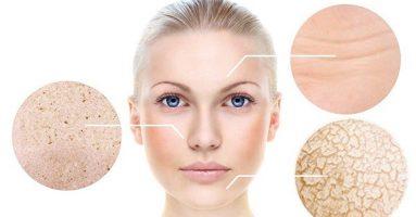 Nguyên nhân gây lão hóa da là gì? Cách phòng và điều trị !