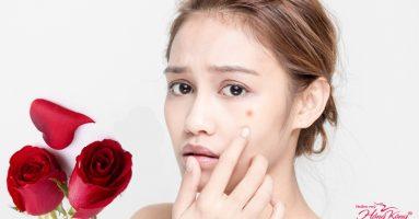 Cách chữa mụn bọc ở mặt bằng hoa hồng cho da sáng mịn không tì vết