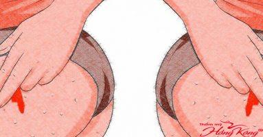 Đây là cách phòng ngừa và điều trị mụn bọc ở mông hiệu quả nhất