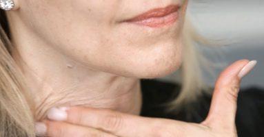 Lời khuyên từ chuyên gia: Có nên căng da cổ không?