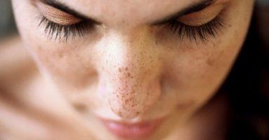 Lão hóa da mặt phải làm sao? 4 bước đơn giản giúp phục hồi làn da lão hóa